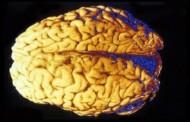كشف سبب غير متوقع لتطور دماغ الإنسان