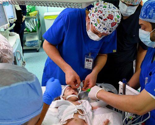 بدء عملية فصل التوأم الطفيلي اليمني في الرياض
